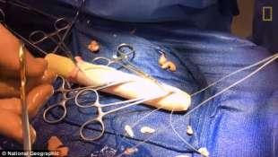 il pene diventa vagina