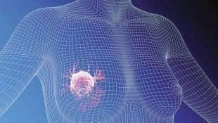 cancro al seno 6