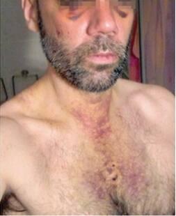 Giovani Gay Italiani Escort X Donne
