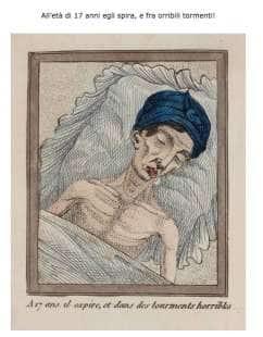 libro del 1830 sugli effetti della masturbazione 18