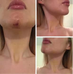 Esercizi per aumento di muscoli di un petto