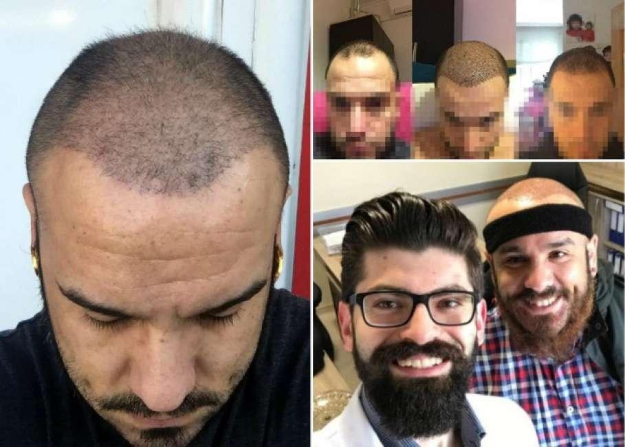 capelli trapiantati cadono