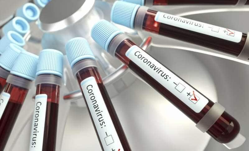 coronavirus sangue