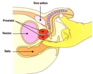come raggiungere la prostata per la stimolazione anale