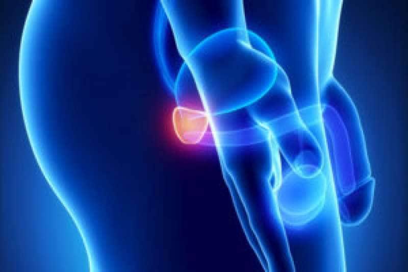 prostata palpazione del urologo