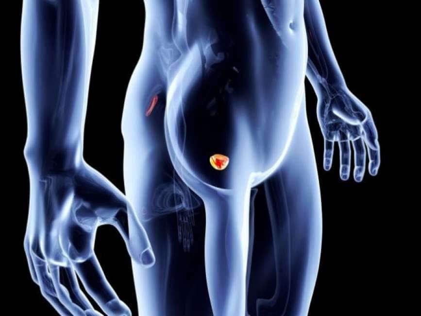 la prostata è ereditaria
