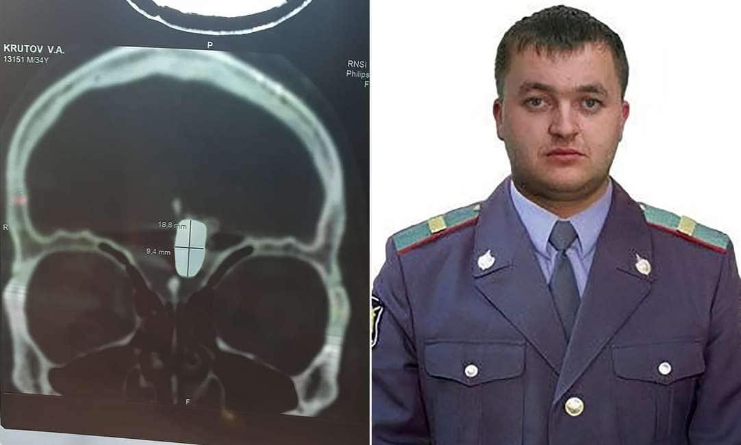 DIE HARD – UN EX POLIZIOTTO RUSSO VIVE DA DIECI ANNI CON UN PROIETTILE CONFICCATO NEL CERVELLO...