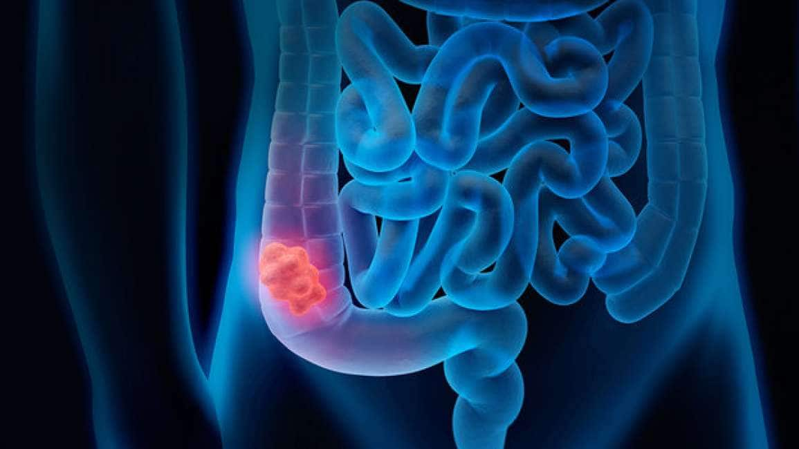 tumore della prostata 8 sintomi principality